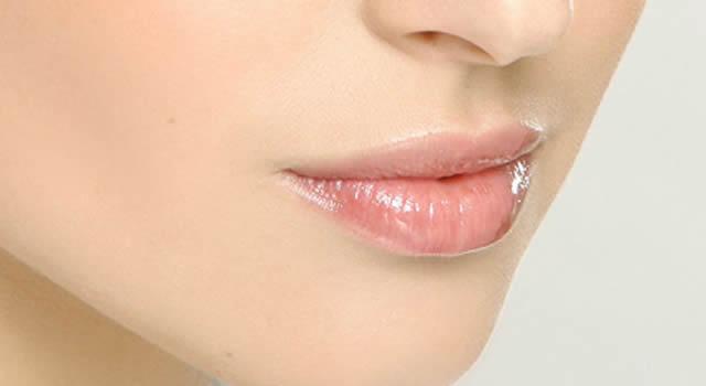 Aplicación sustancia de relleno facial
