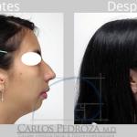 ¿Qué tipo de deformidades estéticas se pueden corregir con una cirugía de nariz?