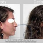 ¿Hay más deformidades de la nariz que se puedan corregir?